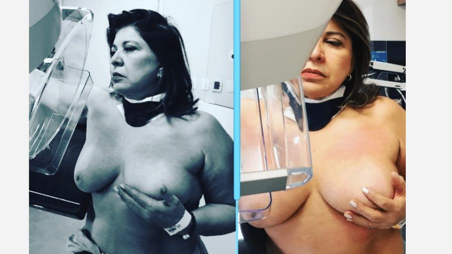 Roberta Miranda durante mamografia - Reprodução/Instagram
