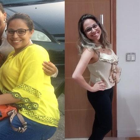 Ao todo, Jéssica Mendes emagreceu 14 quilos em três meses de tratamento - Arquivo Pessoal