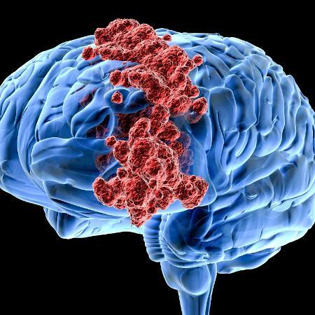 Terapia combina uma molécula fotoativa e um agente quimioterápico, ambos encapsulados em nanopartículas - iStock