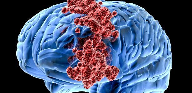 Bactérias seriam capazes que evitar câncer no cérebro
