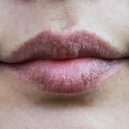 De lábios secos a olheiras: veja truques para resolver os perrengues de beleza - Getty Images