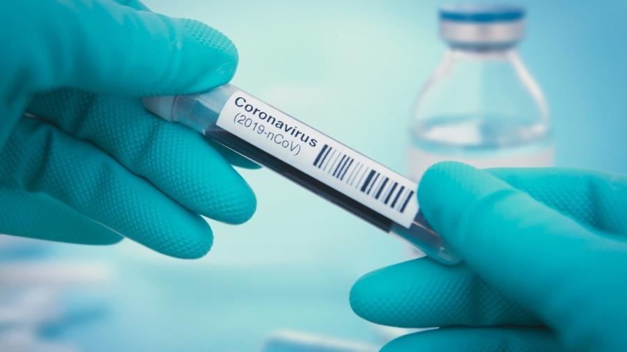 Cientistas pelo mundo correm para achar remédio eficaz contra coronavírus - iStock