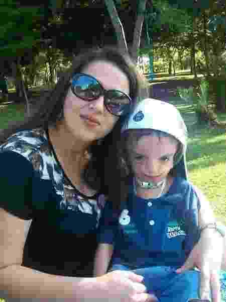 Sandra com o filho Marcel, portador da síndrome Treacher Collins - Arquivo pessoal