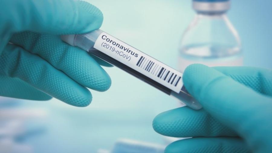 Tubo de ensaio coronavírus - Getty Images