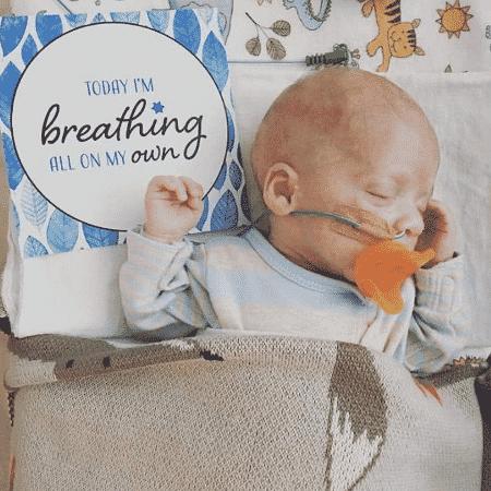 """Série marca conquistas de prematuros: """"Hoje estou respirando sozinho"""" - Reprodução/instagram.com/miraclemumma/"""