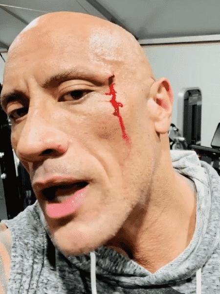 """Dwayne """"The Rock"""" Johnson se machucou enquanto carregava correntes em sua academia particular - Reprodução"""