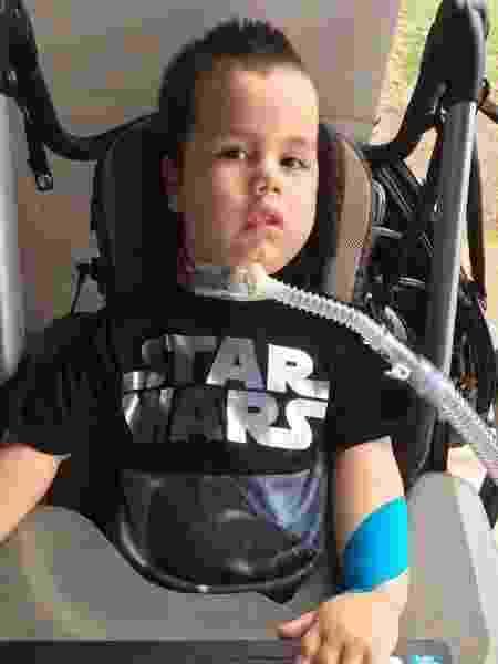 Davi Pereira Martins, 4, tem atrofia muscular espinhal (AME) - Reprodução/Facebook