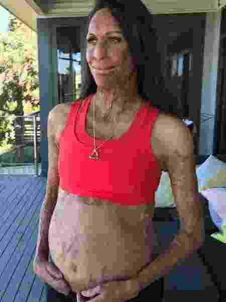 Modelo e atleta Turia Pitt está esperando seu primeiro filho  - Reprodução/Instagram/turiapitt