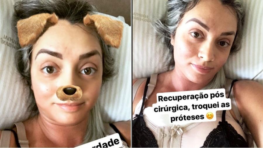 Juju Salimeni se recupera de cirurgia de troca de próteses de silicone nos seios - Reprodução/Instagram