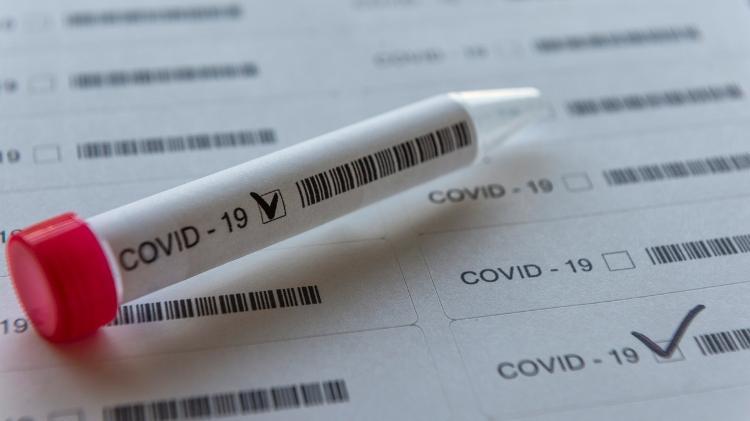 Dados da covid no país | Pelo 2º dia, Brasil tem a maior média de mortes por covid-19 em 5 meses
