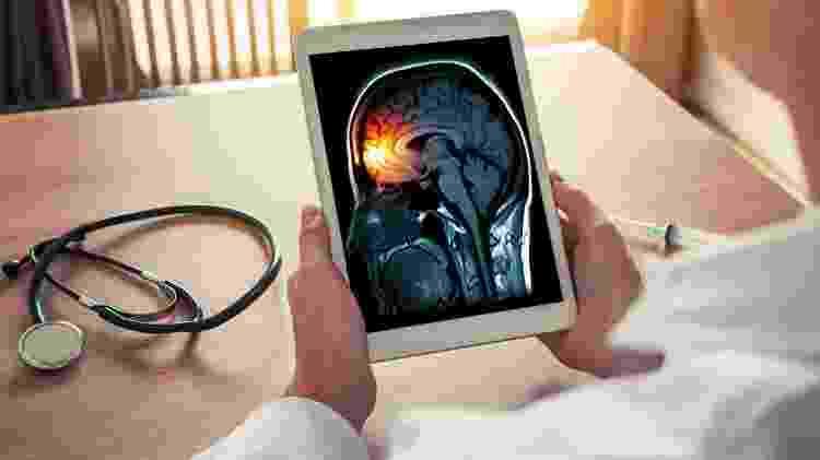 Conceito de dor de cabeça, meningite, enxaqueca - iStock - iStock