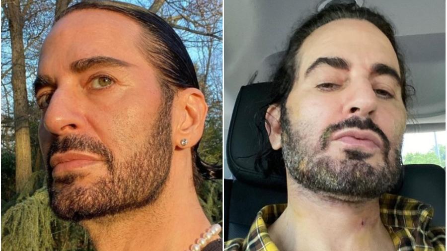 Marc Jacobs antes e depois de cirurgia plástica - Reprodução/Instagram