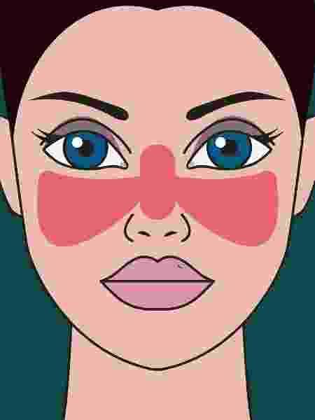 Lúpus, mancha vermelha em forma de borboleta no rosto - iStock - iStock