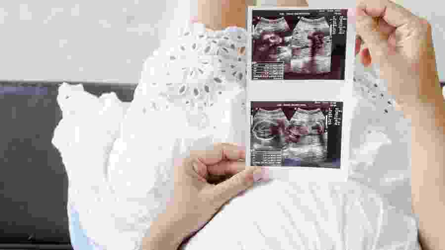 Fazer xixi depois de transar não tem poder de evitar a gravidez, e o formato da barriga não está relacionado com o sexo da criança - Getty Images