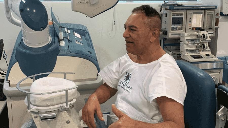Jassa, cabeleireiro de Silvio Santos, raspa cabeça para transplante capilar - Reprodução/Instagram/jassajj