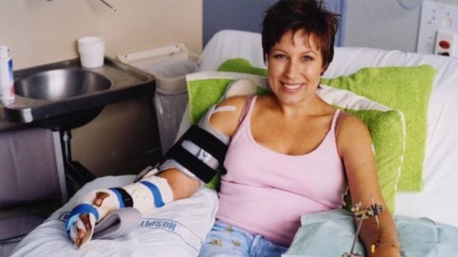 Em 2003, Simone Butler teve as mãos decepadas após um ataque do então namorado, com uma espada de samurai - Serena Stevenson