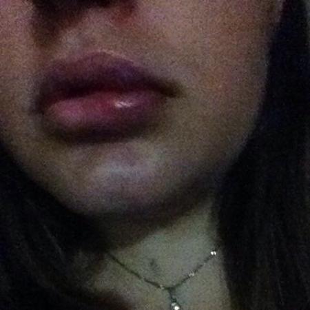 Barbara Braga, 22, foi agredida por um desconhecido dentro da casa de shows - Arquivo pessoal