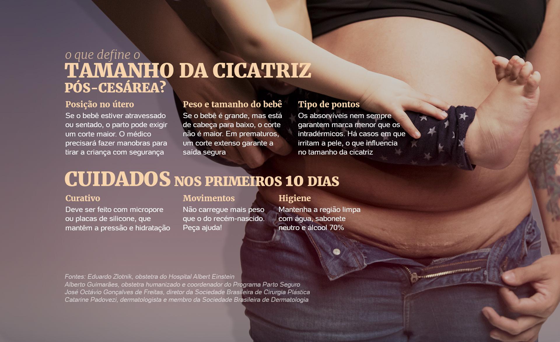 Bruna Sanches/UOL