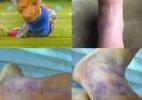 """""""Valeu a pena"""", diz Alexis Sánchez sobre pisão no pé. Veja como ficou! - Reprodução / Facebook"""