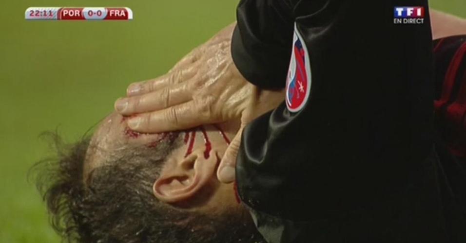 Ricardo Carvalho sangra após lance com Evra
