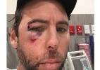 Depois de ser preso, multicampeão da natação publica foto machucado e some - Reprodução/Instagram