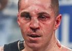 Pugilista britânico termina combate com nariz torto após castigo no ringue - Reprodução