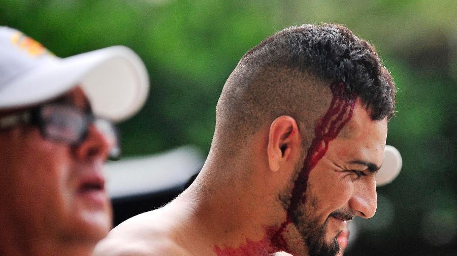 Torcedores do Vasco tiveram que ser atendidos em hospital após confusão com polícia - DHAVID NORMANDO/FUTURA PRESS/ESTADÃO CONTEÚDO