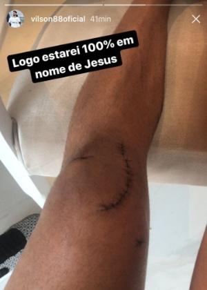 Vílson, zagueiro corintiano, publicou foto do joelho em rede social