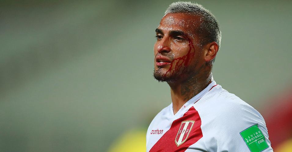 Miguel Trauco ficou sangrando após um choque com Richarlison, na partida entre Peru e Brasil