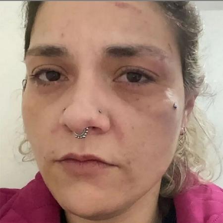 Mayara Duarte foi agredida pelo ex-marido, diretor de bateria da Gaviões da Fiel - Arquivo Pessoal