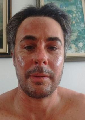 Ângelo Alves mostra rosto após acidente em food truck de Salvador