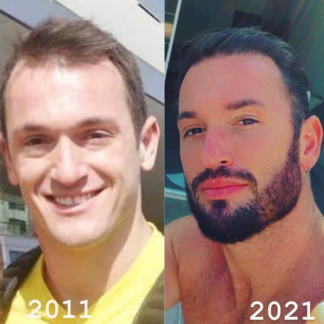 Diego Hypolito mostra antes e depois de procedimentos estéticos