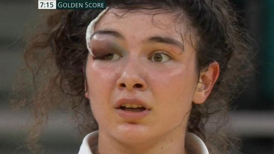 Madina Taimazova, da Rússia, com o olho inchado e um grande hematoma após luta contra japonesa Arai no judô - Reprodução/SporTV