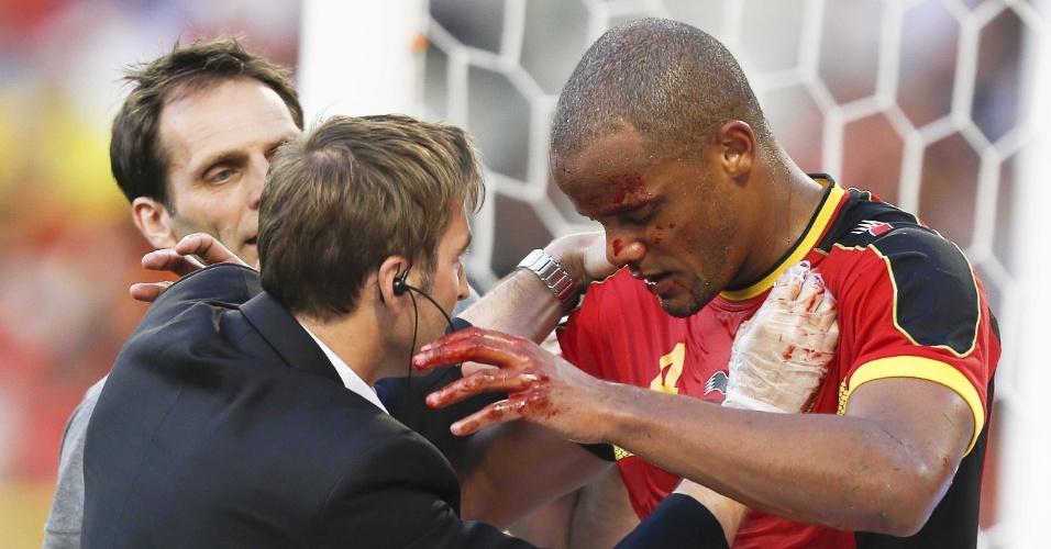 07.jun.2013 - Médico da Bélgica tenta estancar sangramento no nariz do zagueiro Kompany durante jogo contra a Sérvia pelas Eliminatórias Europeias