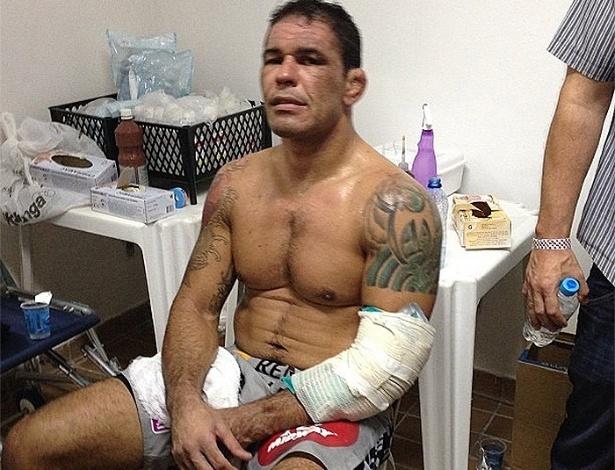 Minotauro com o braço lesionado depois de ser finalizado por Werdum em Fortaleza