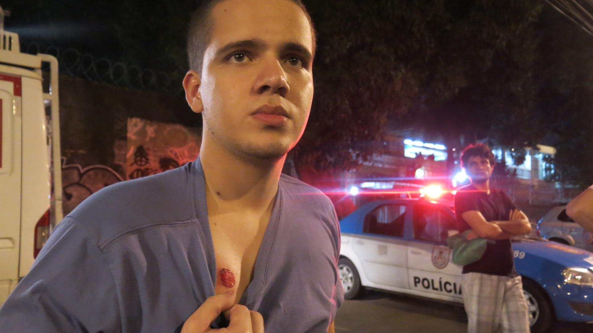Estudante Fernando Matos mostra marca de tiro levado em manifestação