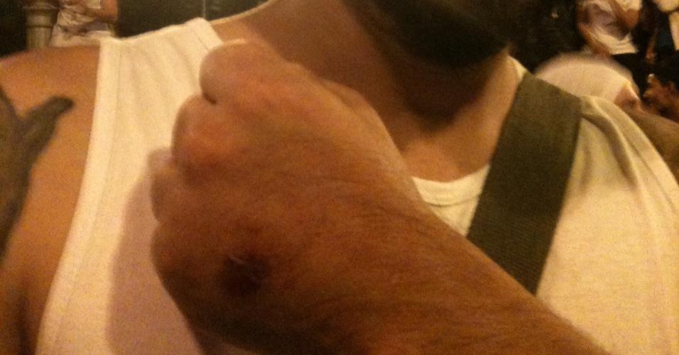 O técnico de informática Daniel Sanabria, de 30 anos, foi atingido por uma bala de borracha enquanto filmava ação da PM em Belo Horizonte