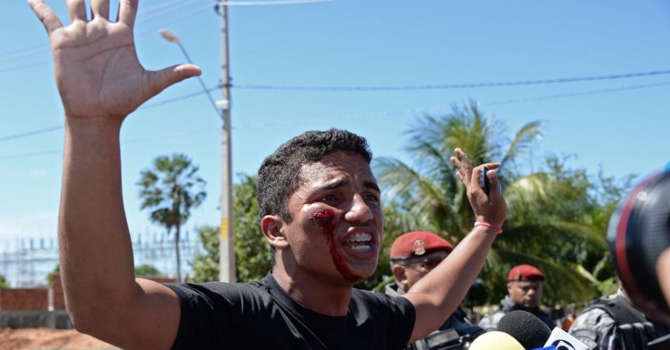 19.jun.2013 - Manifestante é ferido no rosto durante confronto entre manifestantes e policiais nos arredores do estádio Castelão, em Fortaleza