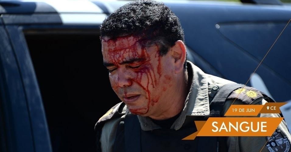 SANGUE Policial fica ferido durante conflito com manifestantes nas proximidades do Castelão durante o jogo entre Brasil e México