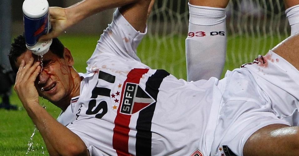 07.ago.2013 - Ganso sangra ao se chocar com a trave no segundo gol do São Paulo contra o Kashima Antlers