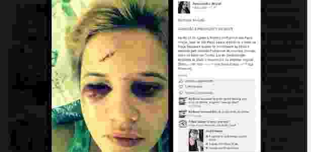 Ana Paula Araújo mostra ferimentos no rosto após ser agredida na praça Roosevelt - Reprodução/Facebook