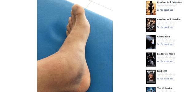 Por que meus pés queimam depois de malhar