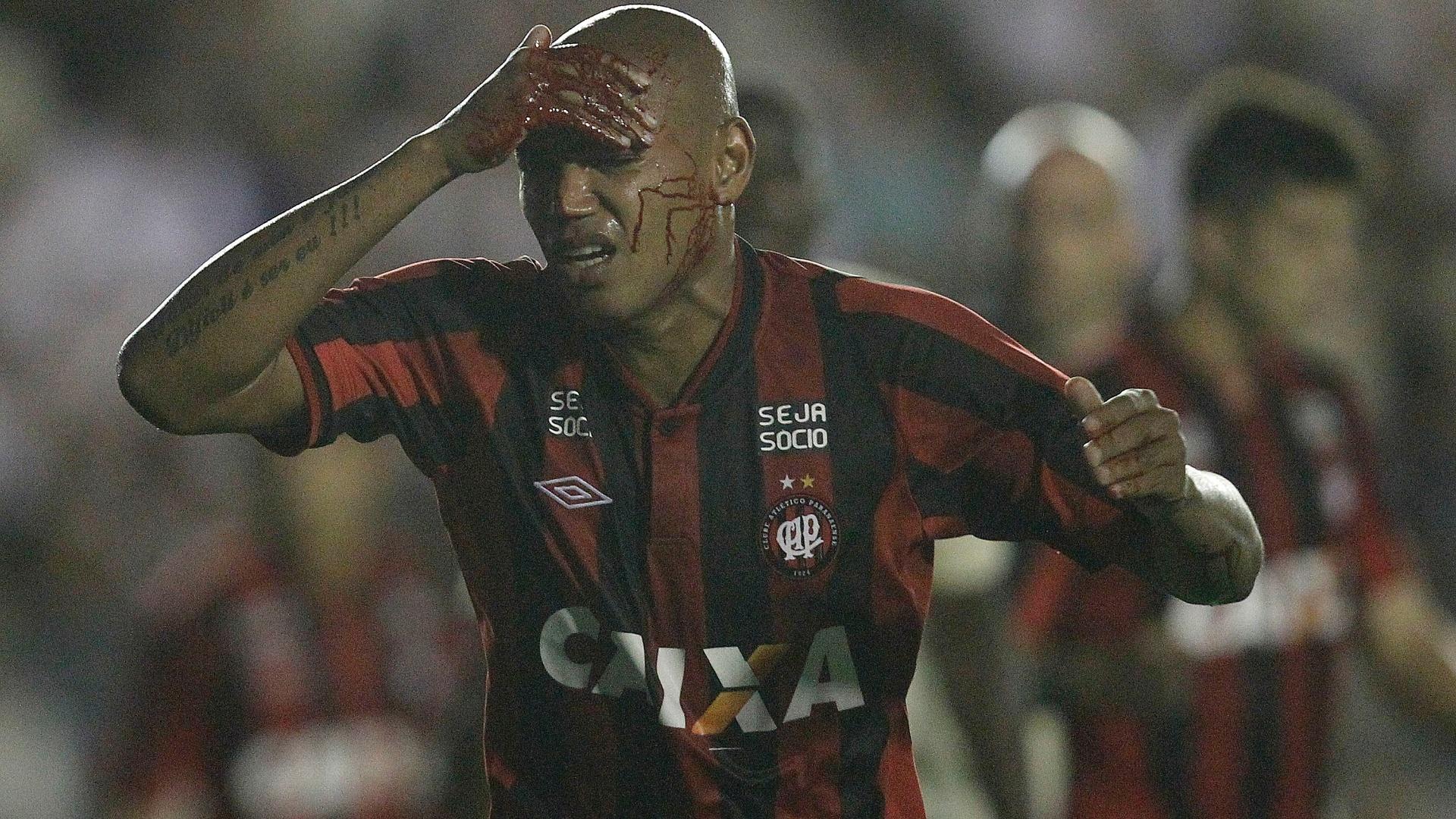 08.set.2013 - Zagueiro Luiz Alberto, com corte na cabeça, precisou ser substituído no Atlético-PR em empate sem gols contra o Vasco