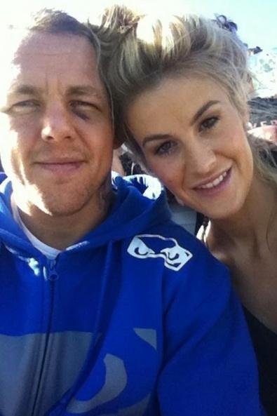 Com olho roxo, lutador britânico Ross Pearson posa com sua namorada, a ring girl do UFC Kristie McKeon, que é australiana