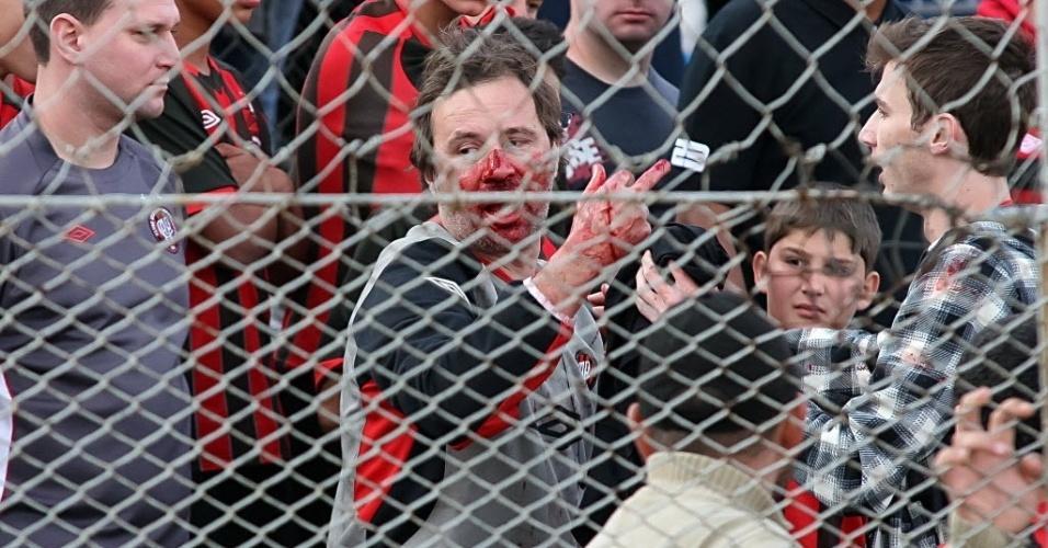 06.out.2013 - Torcedor do Atlético-PR fica sangrando após confusão nas arquibancadas em jogo contra o Coritiba, na Vila Capanema