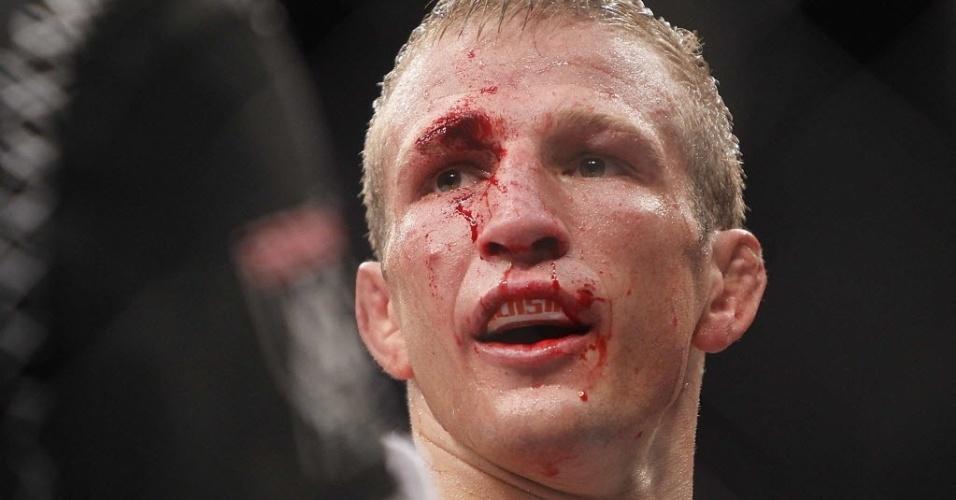 TJ Dillashaw sangra durante luta contra o brasileiro Raphael Assunção no UFC Barueri