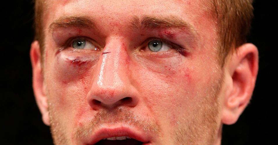 26.10.2013 - Piotr Hallman fica com o rosto machucado após derrota por decisão unânime para Al Iaquinta em Manchester