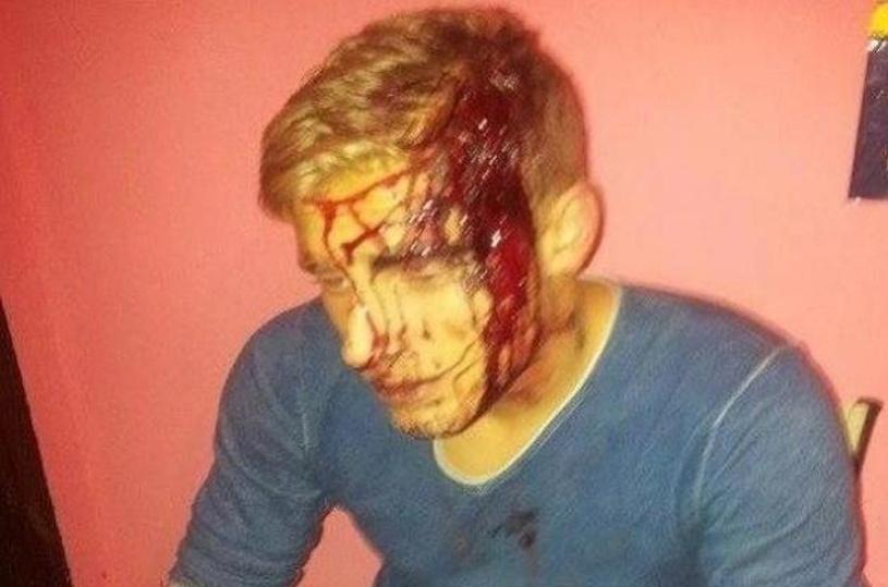Jogador inglês Wilton Connor aparece ensanguentado após levar machadada na cabeça