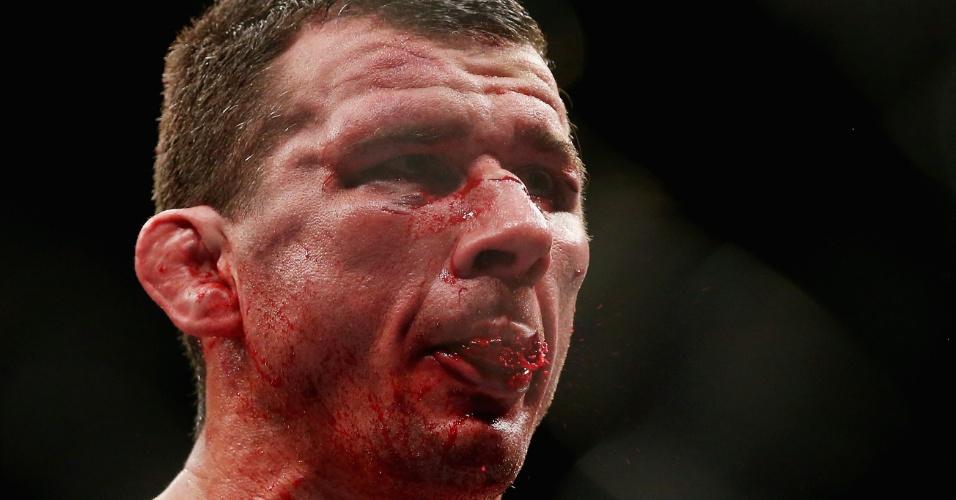 7.dez.2013 - Anthony Perosh cospe sangue e exibe o rosto bem machucado após perder por pontos para Ryan Bader