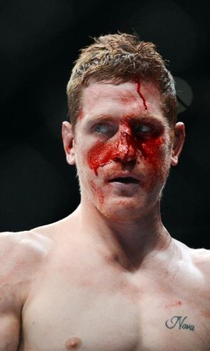 15.dez.2013 - Mac Danzig fica com o rosto sangrando após luta com  Joe Lauzon, no UFC on Fox 9